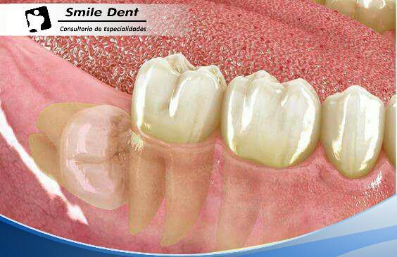 Muelas Del Juicio Deben Extraerse Artículos Ce Smile Dent